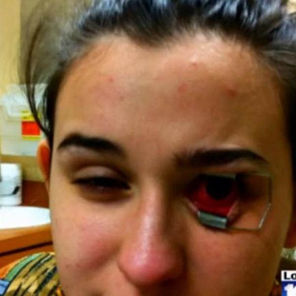 контактные линзы, глаза, паразиты, Студентка не снимавшая линзы полгода - ослепла
