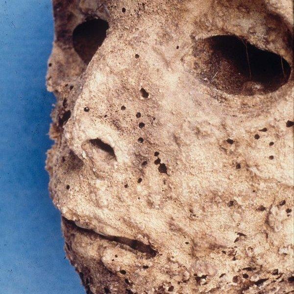 история, Древняя мумия содержит самое раннее свидетельство существования гепатита В